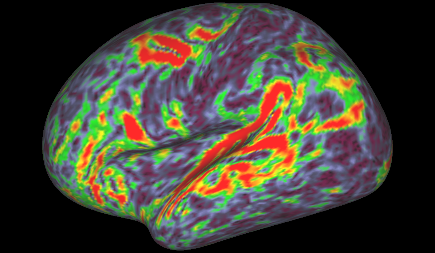 To map the human brain at an unprecedented level of detail, researchers combined brain-mapping techniques that had previously been used only separately, including task-based functional magnetic resonance imaging (fMRI). Shown here is evidence for different areas of brain activation in a language task, as measured by fMRI.  Credit: Matthew Glasser, Ph.D., and David Van Essen, Ph.D., Washington University